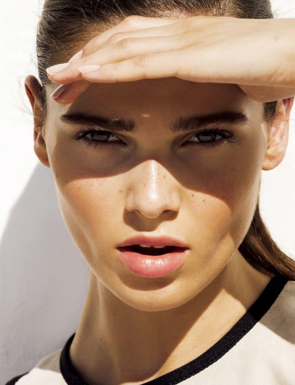 Las manchas se originan debido a la exposición solar sin crema...