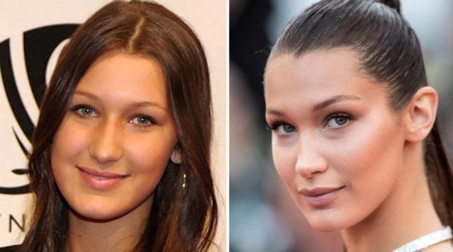 Elsa Pataky | El antes y el después de las rinoplastias de