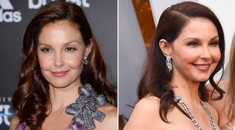 Ashley Judd antes (izquierda) y después (derecha) de someterse a los...