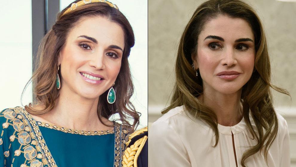 El cambio en el rostro de Rania de Jordania es evidente si comparamos...