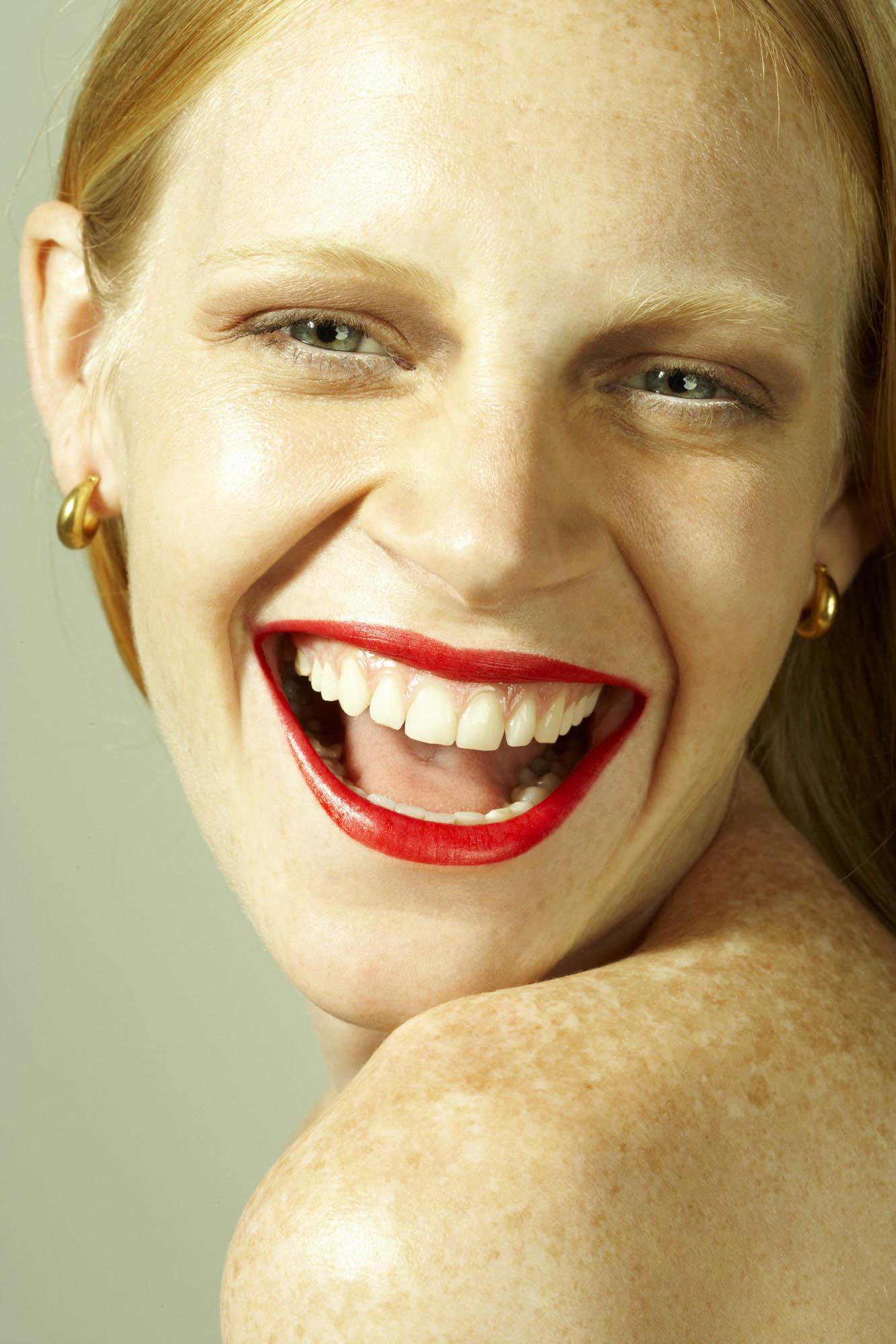 Las manchas en la piel por estrés suelen aparecer en el rostro, el...