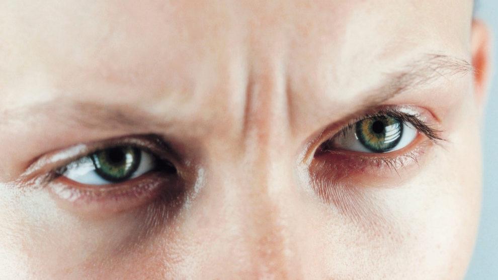 Descubre cómo prevenir y tratar las arrugas del entrecejo.