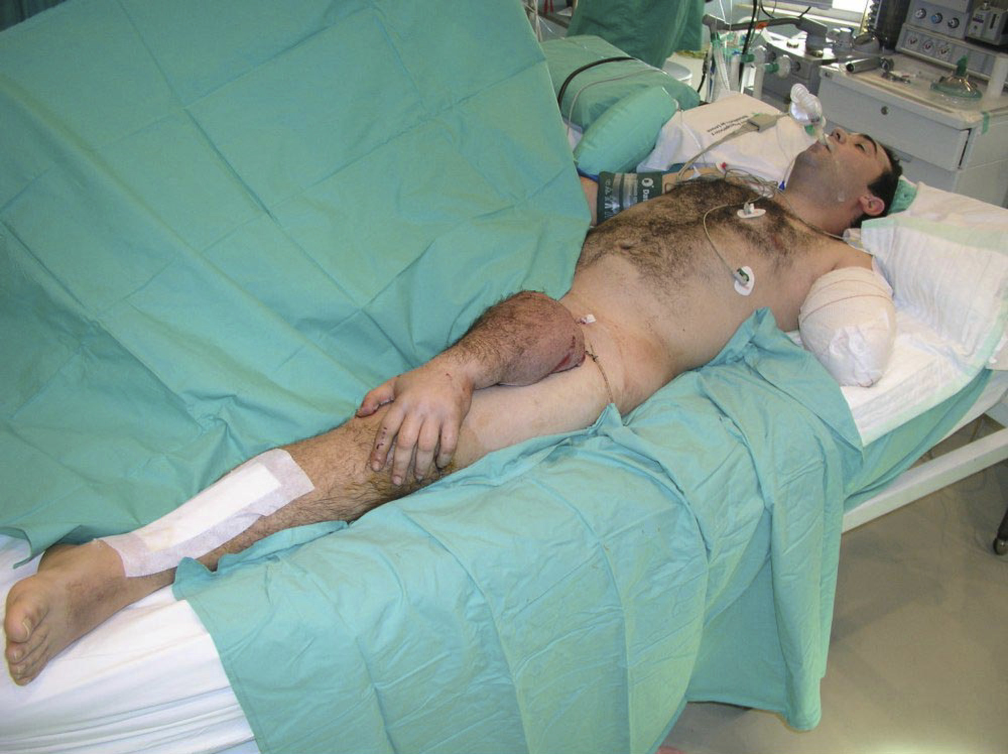 Marzo 2004. Mantiene vivo un brazo amputado al conectarlo con las venas y arterias de la pierna del propio amputado durante nueve días y reimplantarlo posteriormente.Israel  Sarrio perdió su brazo izquierdo en un accidente de tráfico.
