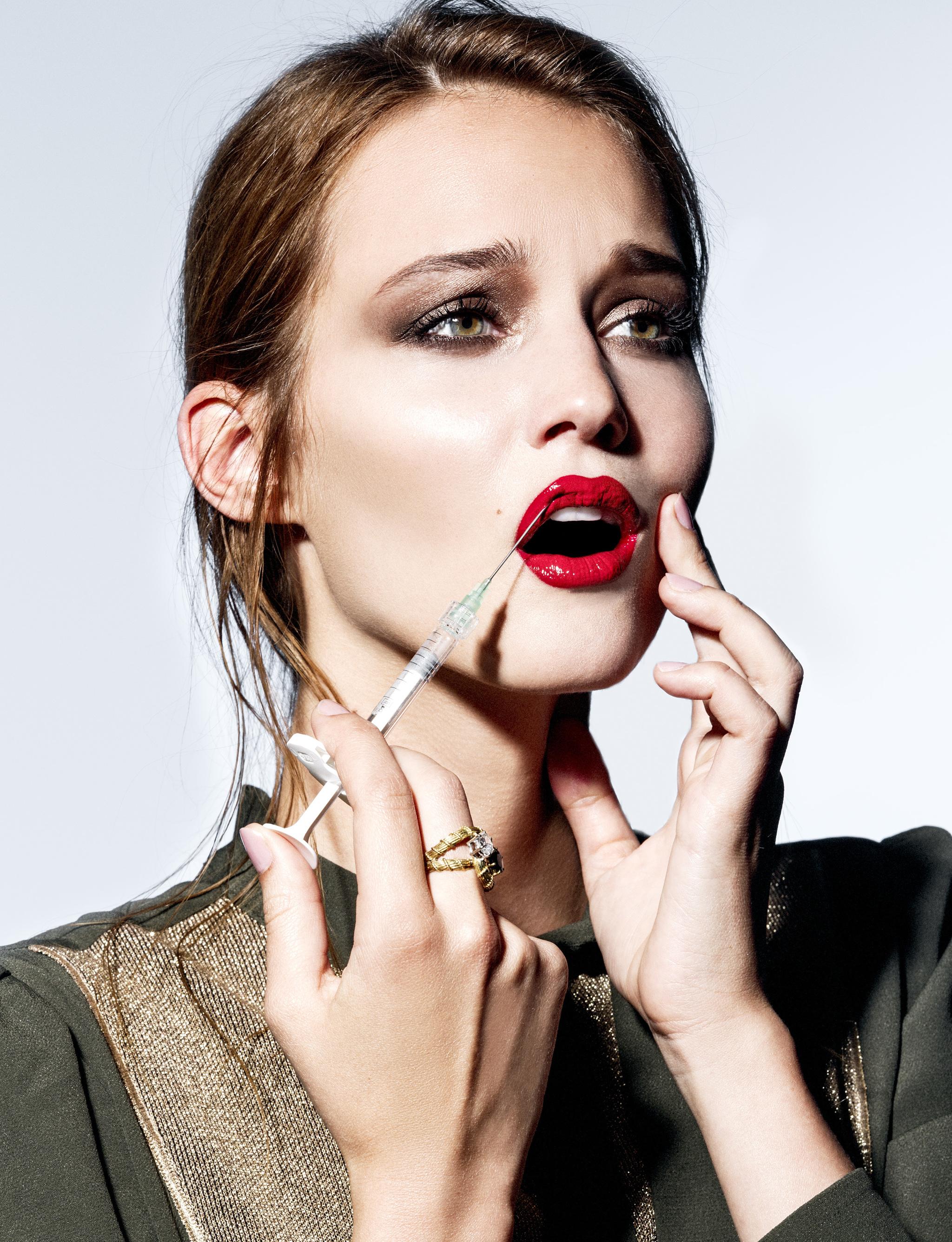 El ácido hialurónico es el relleno más utilizado para aumentar los labios por sus resultados naturales.