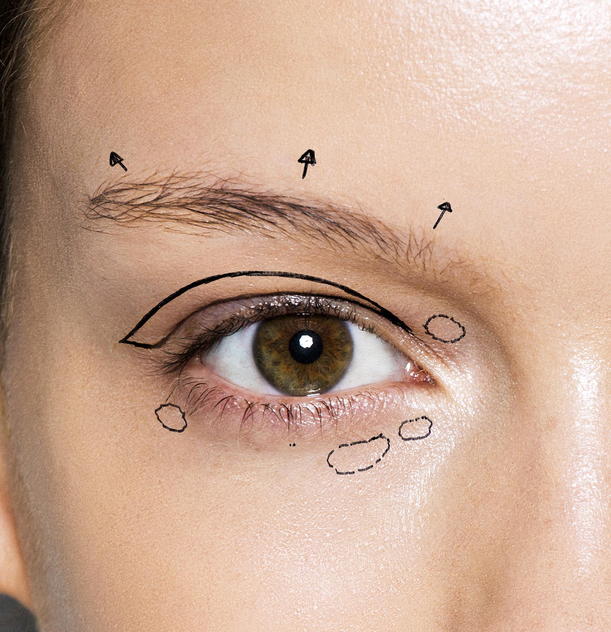 Ponte en manos de un profesional para elegir el mejor tratamiento para tu mirada.