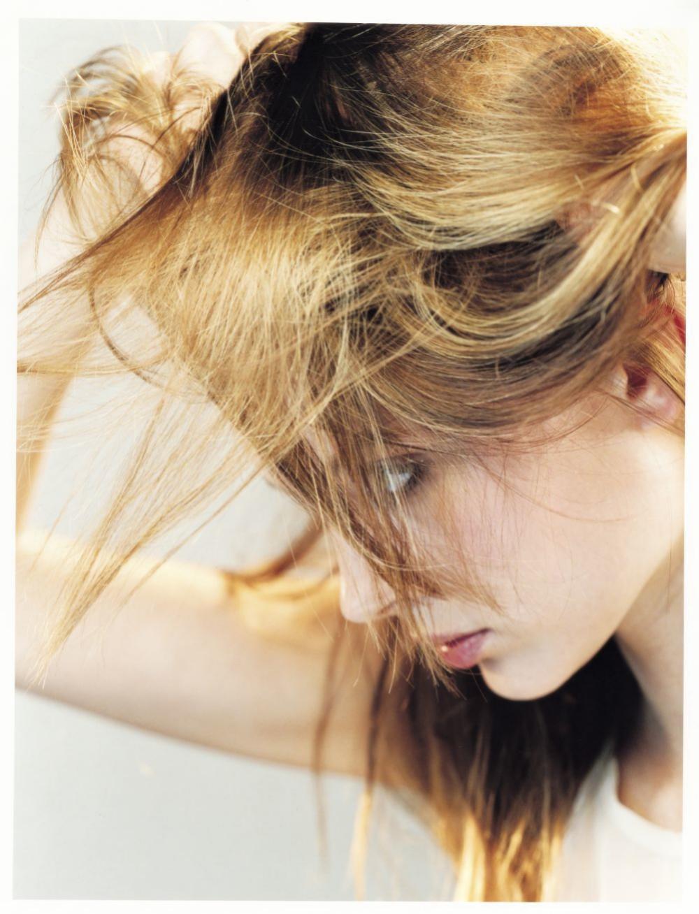 La caída capilar puede tener causas hormonales-