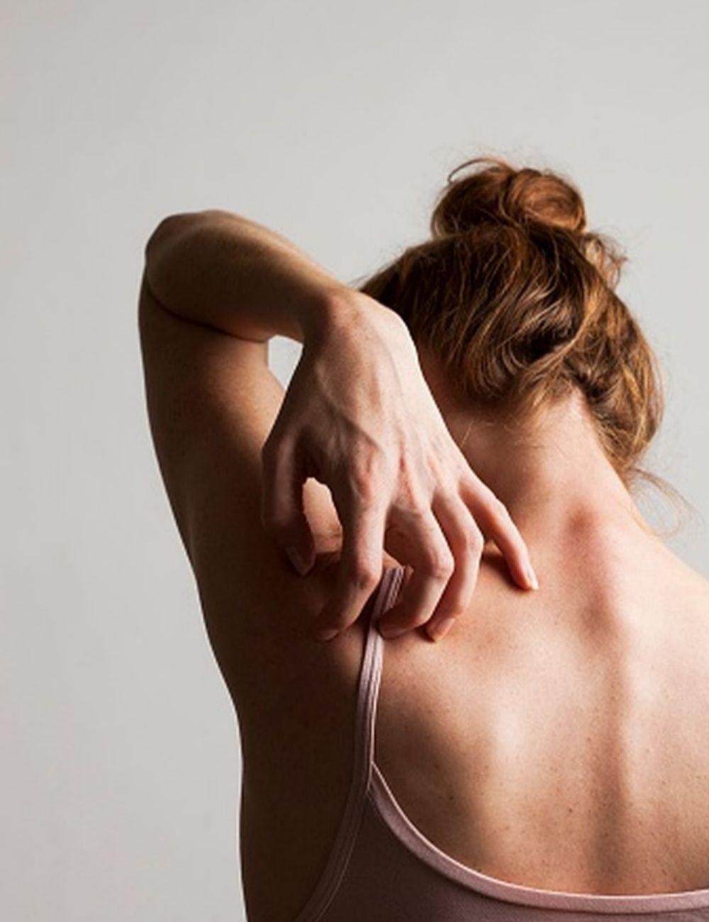 Las reacciones alérgicas a alimentos y medicamentos se manifiestan con frecuencia en la piel.