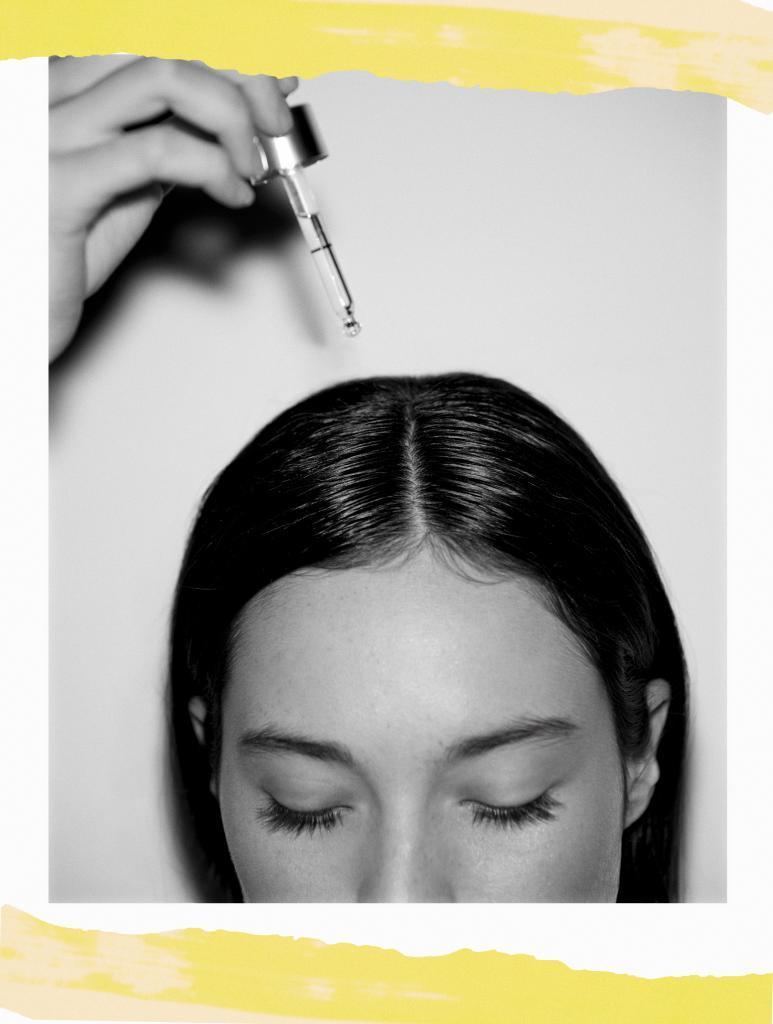 Tratamientos para evitar la caida del cabello