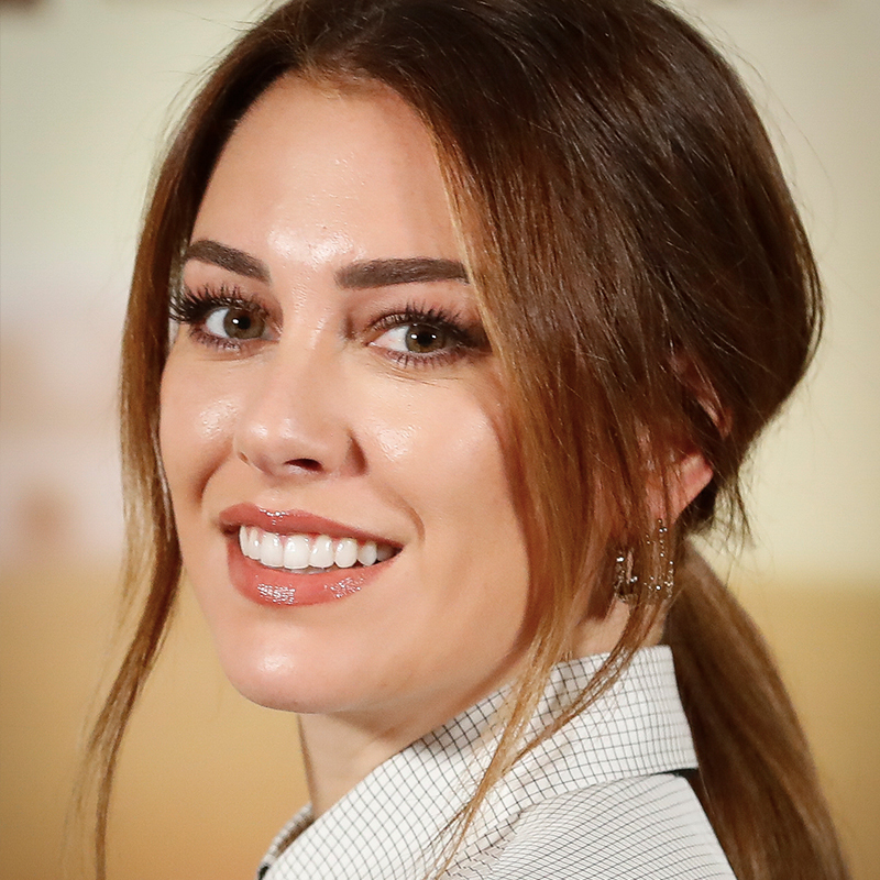 Blanca Suárez presume de sonrisa perfecta.