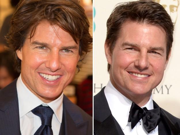 Tom Cruise sucumbe a los retoques estéticos